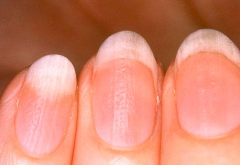 Ногти болезни