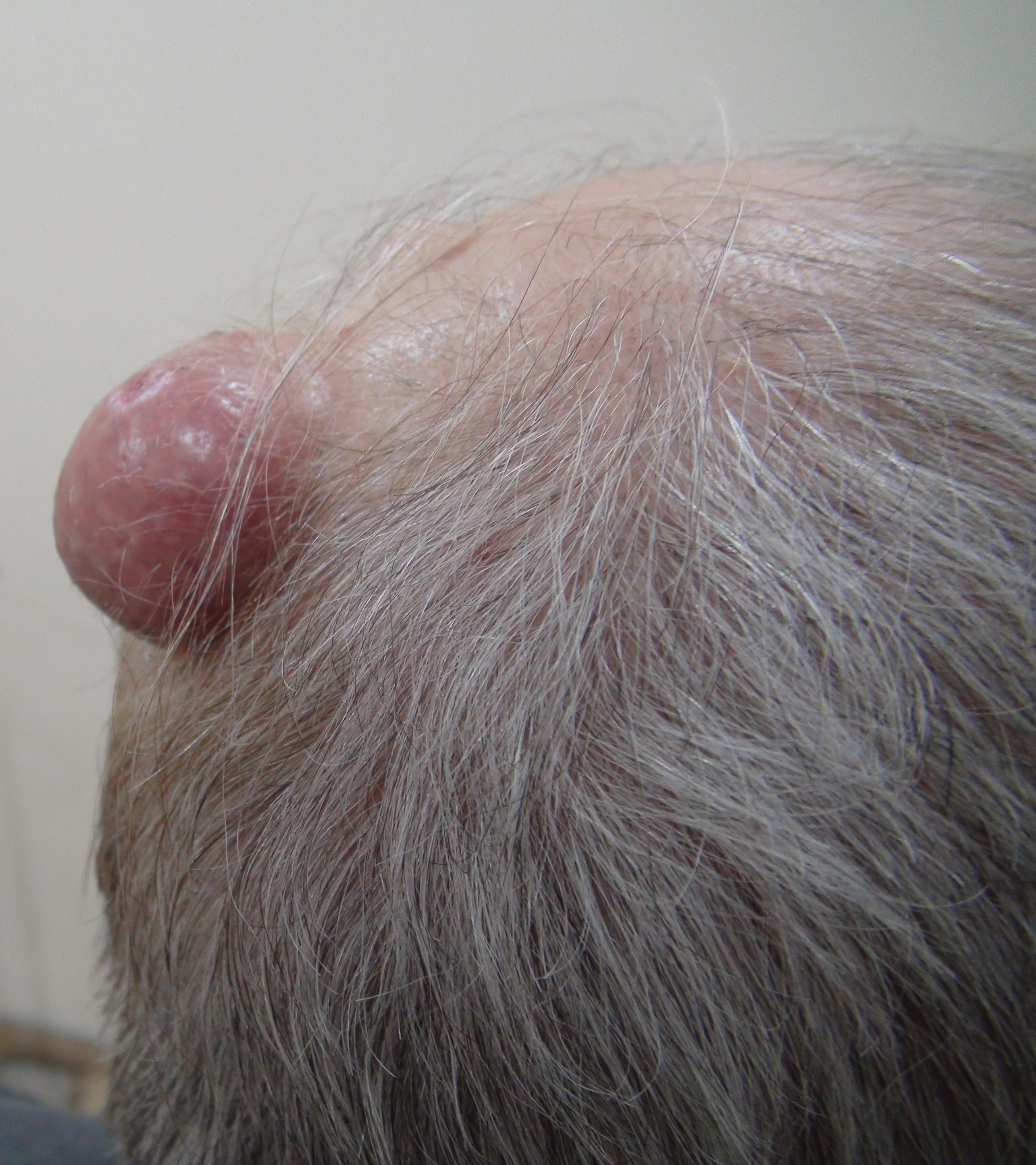 Методы лечения бородавок