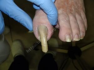 Рис. 1. При онихогрифозе ногтевая пластина имеет вид рога.