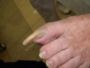 Рис. 3. Онихогрифоз с поражением только 1-го пальца стопы.