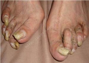 Рис. 4. Онихогрифоз у женщины 89 лет с поражением всех ногтевых пластин на обеих стопах.