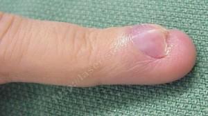 Рис. 2. Большая гломусная опухоль под ногтевой пластиной. Дистрофия ногтевой пластины