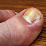 Рис. 1. Диабет особенно часто проявляется воспалительными заболеваниями ногтевого комплекса.