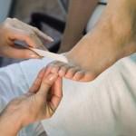 Рис. 7. Воспалительные процессы ногтевых пластин чаще всего возникают при неправильном уходе за ногтями.