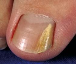 Рис. 1. Дистально-латеральный онихомикоз - поражение свободного края ногтя.