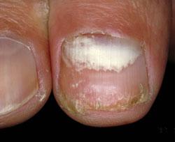 Рис. 3. Проксимальный онихомикоз - поражен корень ногтя.