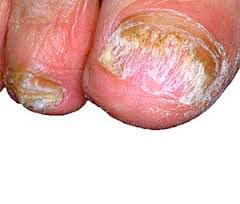 Рис. 4. Тотальный дистрофический онихомикоз - поаржена грибком вся ногтевая пластина.