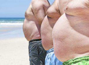 Рис. 2. Гинекомастия может встречаться в пожилом возрасте при низком уровне тестостерона.