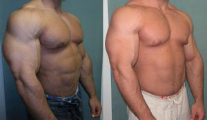 Рис. 3. Гинекомастия может встречаться в молодом и среднем возрасте при употреблении стероидов.