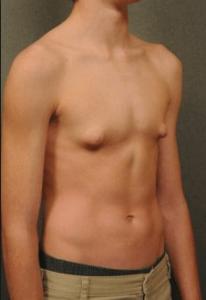 Рис. 4. Гинекомастия у подростков проходит обычно самостоятельно.
