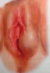 Рис. 1. Бартолиновая киста у женщины слева.