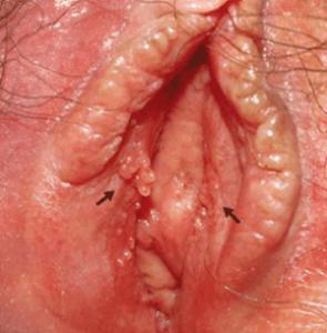 Рис. 5. Генитальные бородавки называют кондиломами.