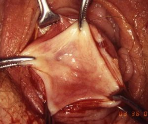 Рис. 4. Марсупиализация бартолиновой кисты - древний метод лечения.