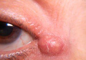 Рис. 1. Жировик под глазом.