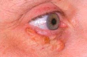 Рис. 4. Жировики под глазами при высоком холестерине в крови.