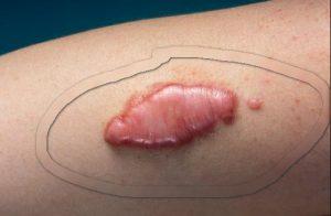 Рис. 1. Келоидный рубец -- это нездоровый рубец, который ведет себя как опухоль.