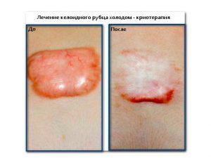 Рис. 4. Лечение келоидного рубца холодом - это криотерапия.