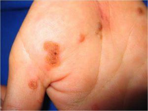 Рис. 2. При сниженном иммунитете бородавок бывает много.
