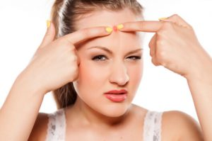 Рис. 3. Атеромы на голове нельзя выдавливать.