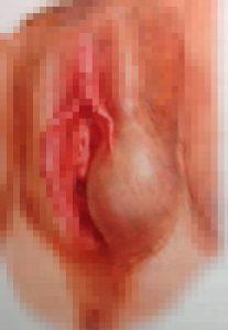 Рис. 1. Киста бартолиновой железы.
