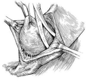 Рис. 3. Вылущивание бартолиновой железы проводится при неэффективности других методов лечения.