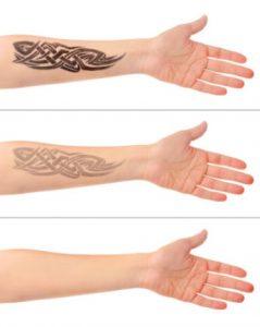 Рис. 4. При лазерном удалении татуировки пигмент уходит постепенно.