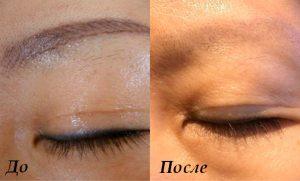 Рис. 5. Перманентный макияж лазером можно удалить за один раз без шрамов.