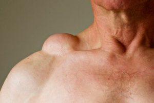 Рис. 1. Жировик может появиться при резком снижении веса.