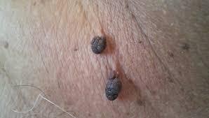 Рис. 2. Папилломы на шее чаще имеют вид кожных висюлек - висячие папилломы.
