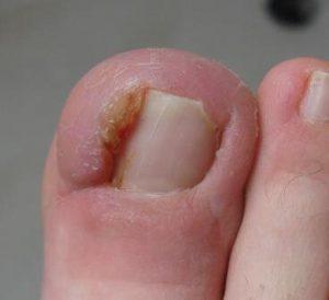 Рис. 1. Лечение вросшего ногтя начинать надо незамедлительно, чтобы не произошло патологическое изменение окружающих тканей.