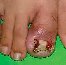 Рис. 2. Осложнения, возникающие при отсутствии своевременного лечения вросшего ногтя.