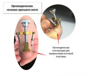 Рис. 2. Ортопедическое лечение вросшего ногтя.