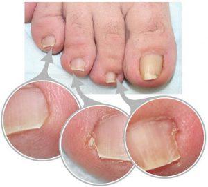 Рис. 3. Типы врастания ногтей.