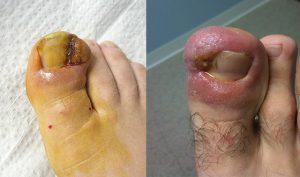 Рис. 3. Сильное воспаление при вросшем ногте.