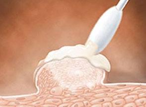 Рис. 5. Удаление бородавок в паху жидким азотом