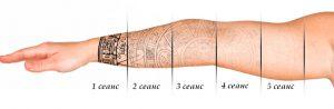 Рис. 1. Лазерное удаление татуировки вызывает ее постепенное побледнение.