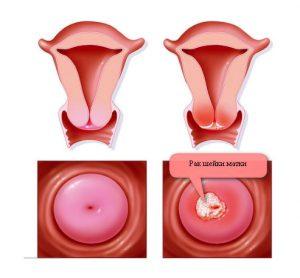 Рис. 1. Кондиломы влагалища опасны тем, что могут переродиться в рак шейки матки