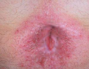Рис. 3. Болезнь Боуэна может развиться на фоне ВПЧ-инфекции и кондилом