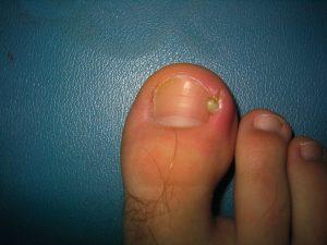 Рис. 1 Вросший ноготь как правило сопровождается воспалением и нагноением