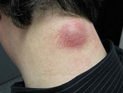 Рис. 2. Атеромы могут воспаляться и причинять беспокойство