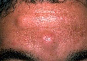 Рис. 1 Атеромы могут встречаться на различных участках лица