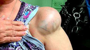 Рис. 2 При расположении липомы без капсулы вплотную к сосудам, появляется онемение участка кожи и боль