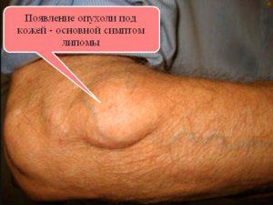 Рис. 1. Появление опухоли под кожей - основной симптом липомы