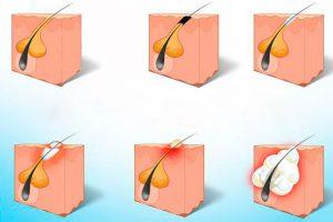 Рис. 1 Атерома лица возникает вследствие закупорки сальных желез
