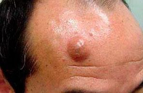 Рис. 2 Атерома выглядит как маленький шарик, под кожей лица