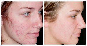 Рис. 1 Рубцы на лице - это серьезный косметический дефект