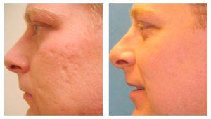 Рис. 3 Лазерная коррекция рубцов на лице