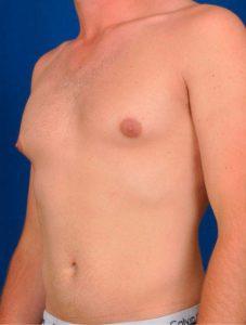 Рис. 1 Гинекомастия - это разрастание у мужчин тканей грудной железы и требует хирургического лечения