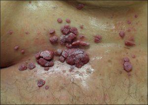 Рис. 1 Кондиломы вызывает вирус папилломы человека (ВПЧ), и они передаются половым путем