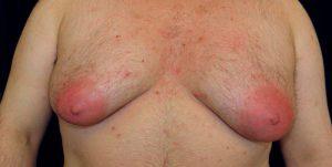 Рис. 1 Гинекомастия - это увеличение грудных желез у мужчин